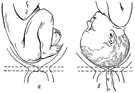 Каким образом перед родами возможно размягчить шейку матки?