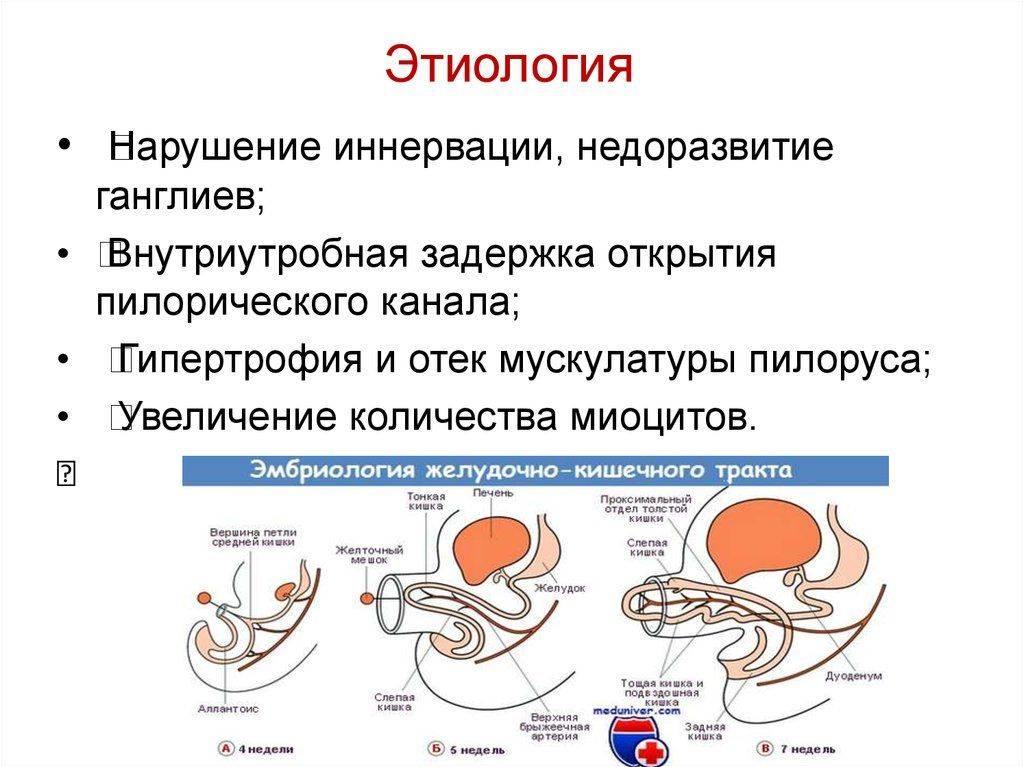 Пилороспазм — большая медицинская энциклопедия