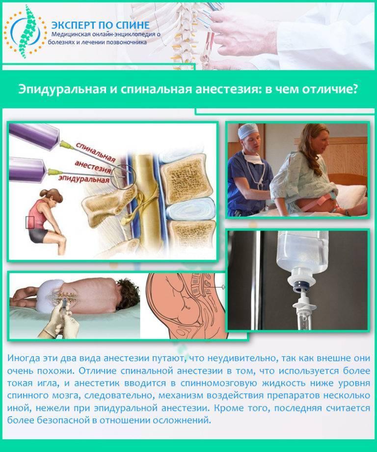 Спинальная и эпидуральная анестезия: в чем разница и что лучше выбрать?