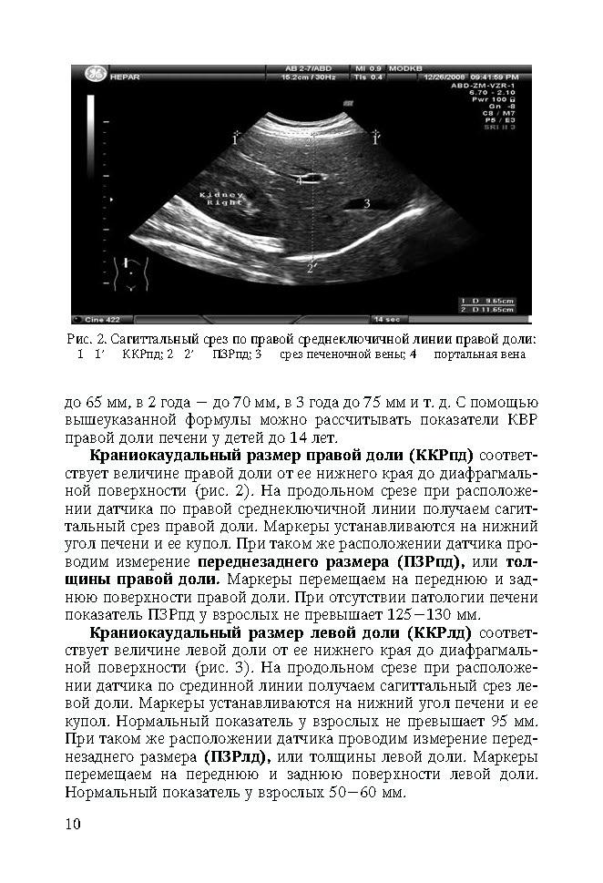 Узи брюшной полости (норма и патология) – узи в красноярске