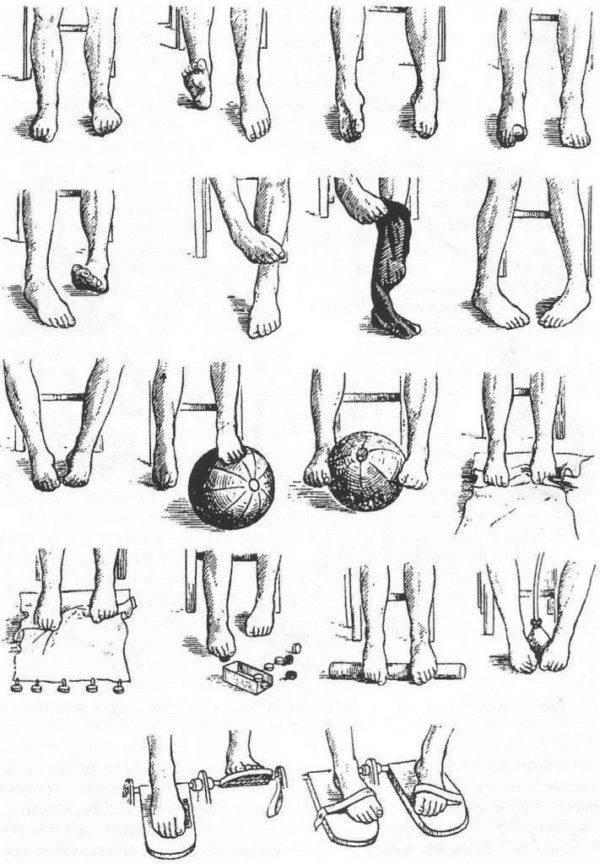 Лечение вальгусной деформации стопы у детей в владимире — причины, диагностика, симптомы — medcenter.online