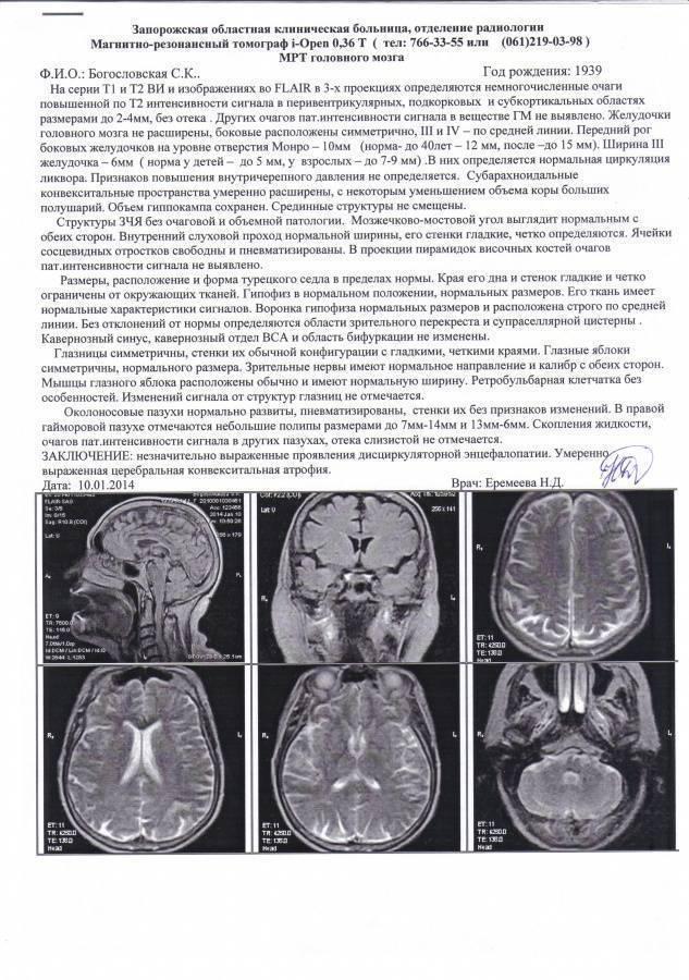 Вентрикуломегалия - признаки, причины, симптомы, лечение и профилактика - idoctor.kz