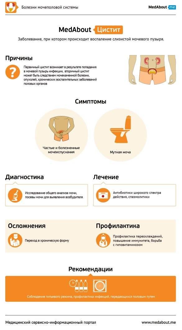 Симптомы и причины интерстициального цистита   боль в мочевом пузыре