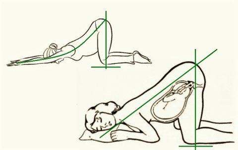 Коленно-локтевое положение при беременности: правильное выполнение и польза