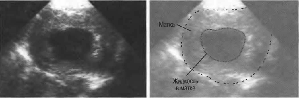 Гипоплазия матки: что это и можно ли забеременеть с такой патологией? * клиника диана в санкт-петербурге