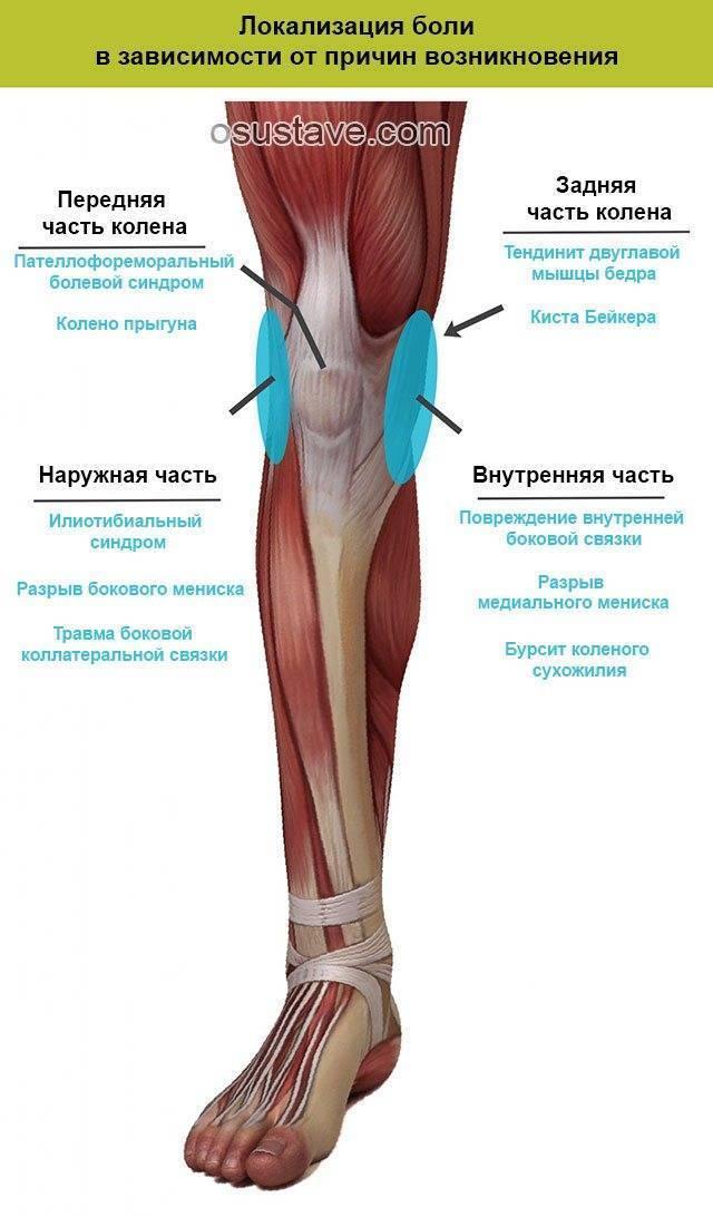 Боль в колене: основные причины и эффективное лечение