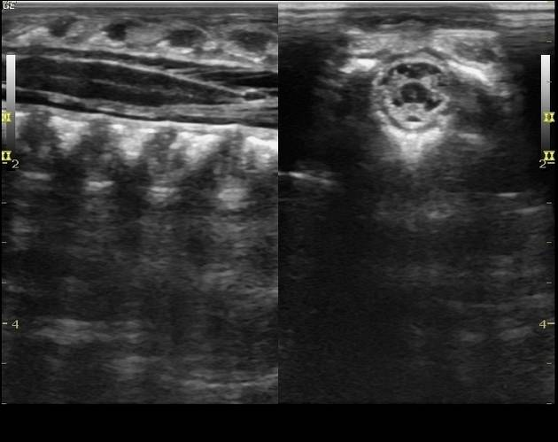 Что показывает УЗИ шейного отдела позвоночника у грудничка и ребенка старшего возраста?