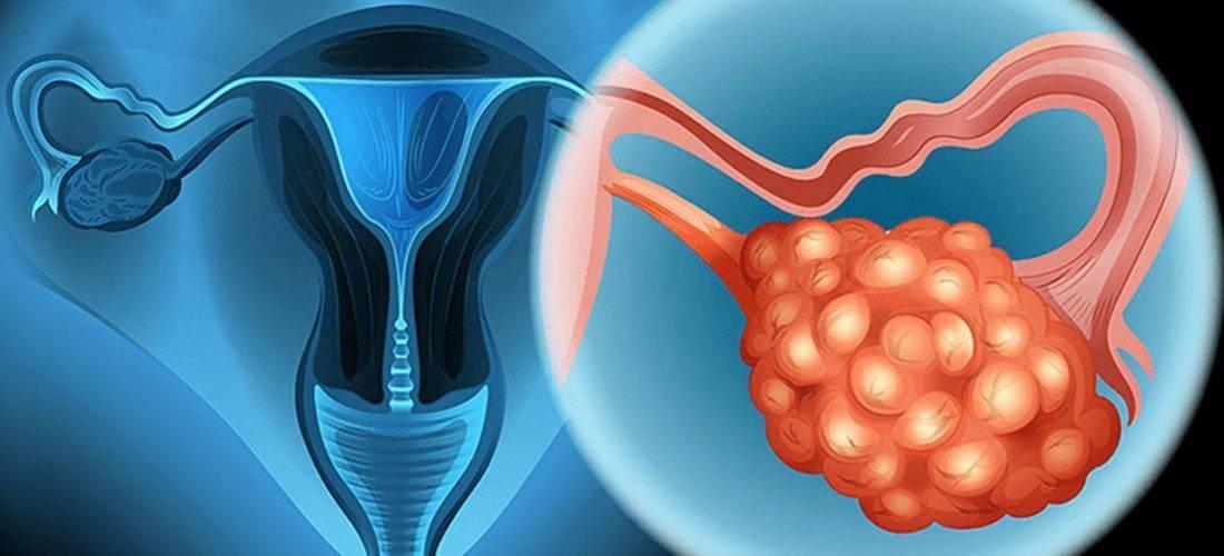 Как делают лапароскопию при непроходимости маточных труб