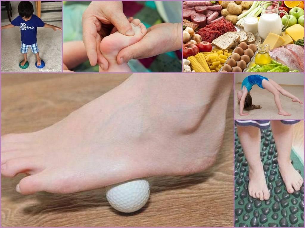 Комплексы лечебных упражнений для стопы ног при артрозе
