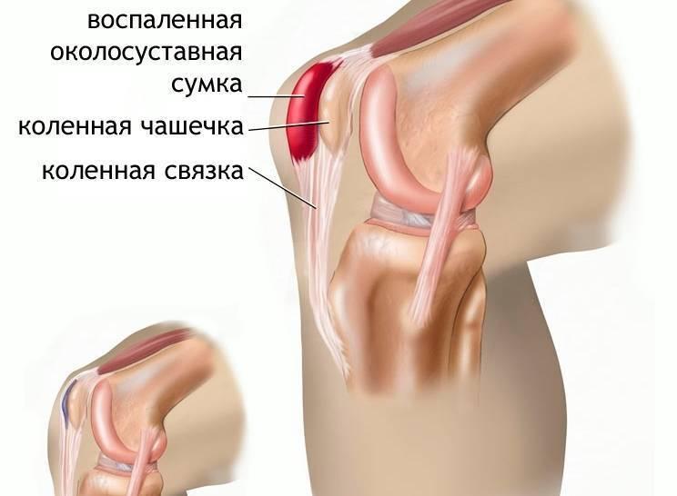 Болят суставы пальцев рук после родов