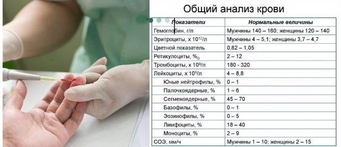 Как сдавать кровь на сахар ребенку 1 года: как правильно подготовиться к анализу?