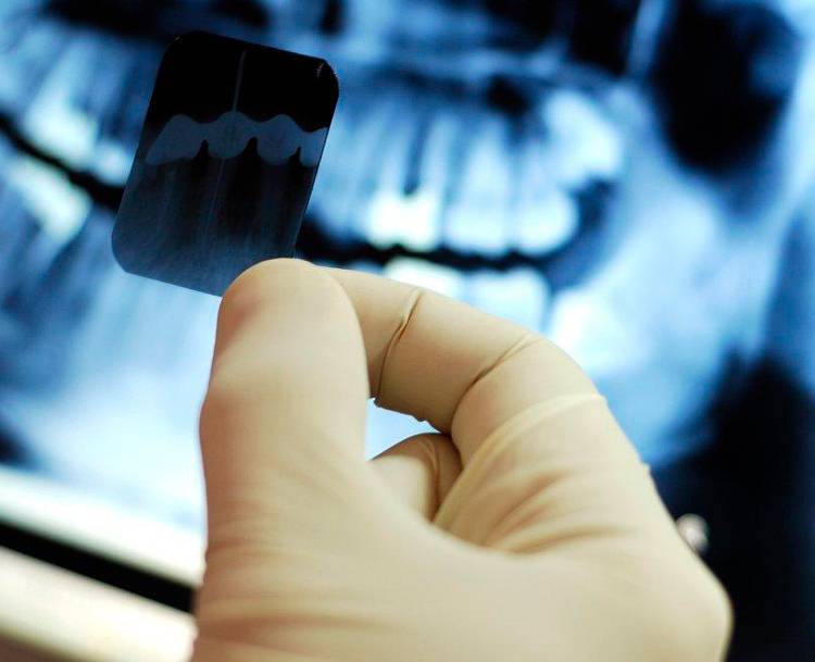 Рентгенография костей и суставов конечностей, рук и ног, в клинике цэлт, москва