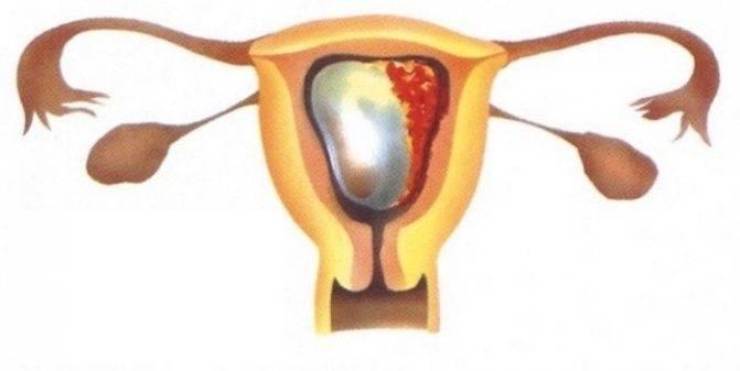 Выкидыш. невынашивание беременности: классификация, причины, диагностика и лечение