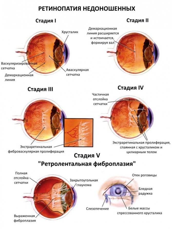 Ретинопатия — это поражение сетчатки глаза, которое спровоцировано сосудистыми повреждениями. - энциклопедия ochkov.net