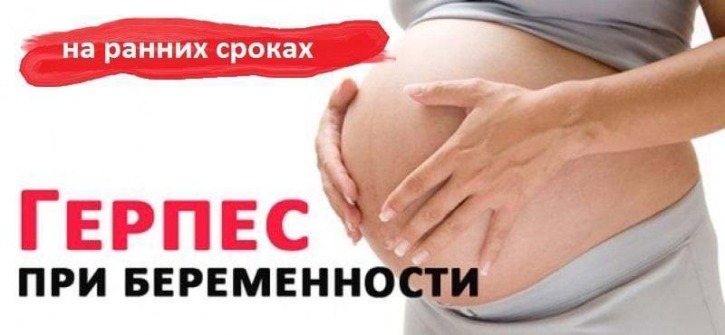 Герпес при беременности