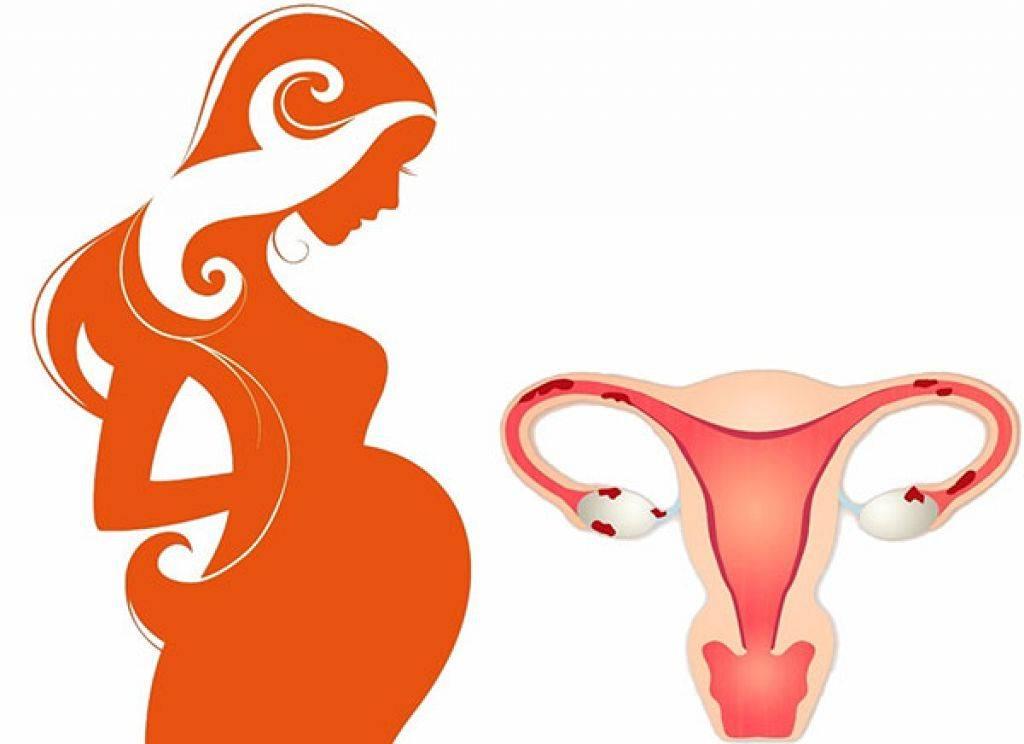 Можно ли забеременеть с одним яичником: шансы на зачатие, возможные опасности и риски