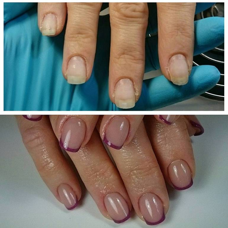Наращивание ногтей при беременности | mamusiki.ru