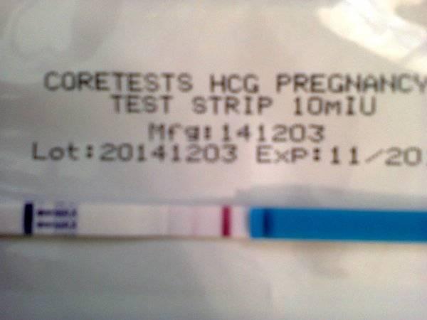 """Пренатальный скрининг - кому показана консультация генетика? что делать при  """"плохом"""" результате? инвазивные методы и  неинвазивный тест"""