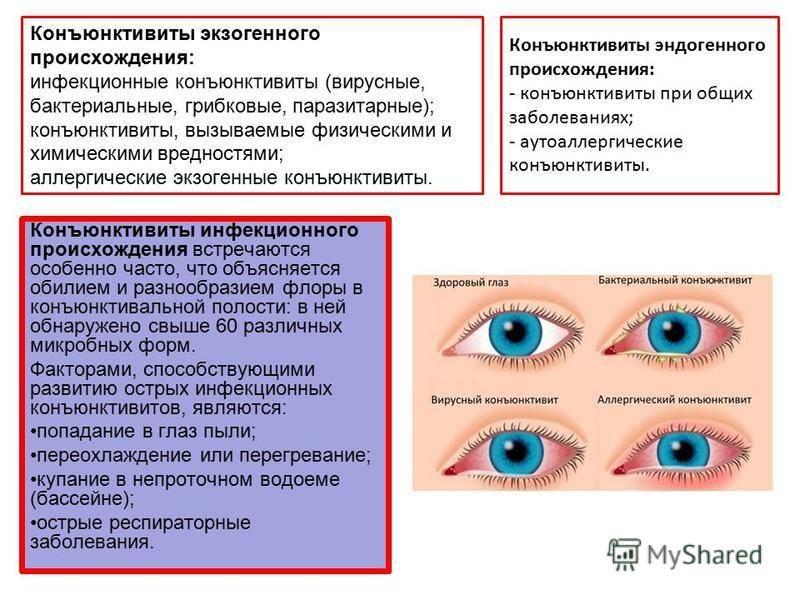 Ячмень на глазу – топ-15 хороших средств 2021. симптомы, причины и лечение