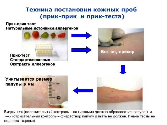 """Пробы на аллергены в сети клиник """"ниармедик"""""""