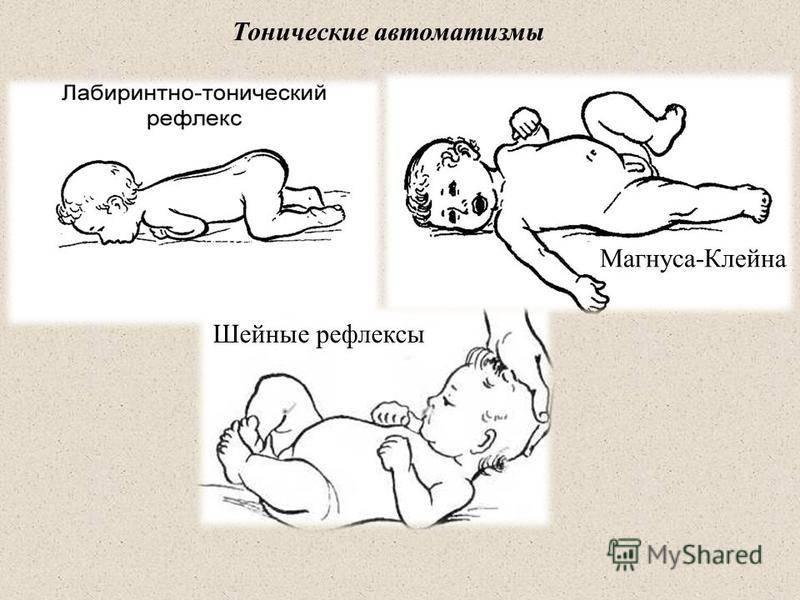 Рефлексы новорожденных — подробная таблица по месяцам