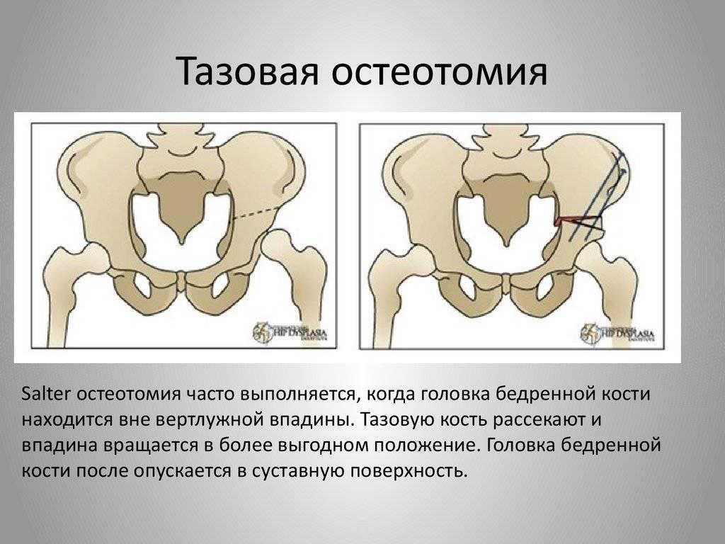 Расхождение костей таза при беременности: какие сроки и что делать