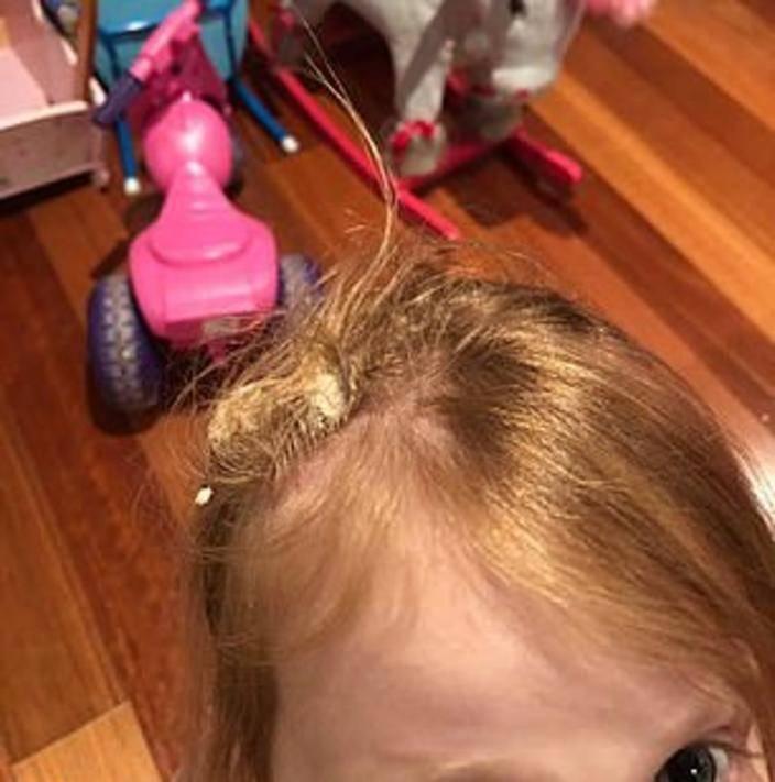 Лучший способ убрать жвачку с волос