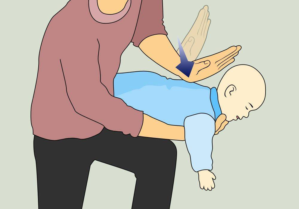 Что делать, если ребенок подавился и задыхается