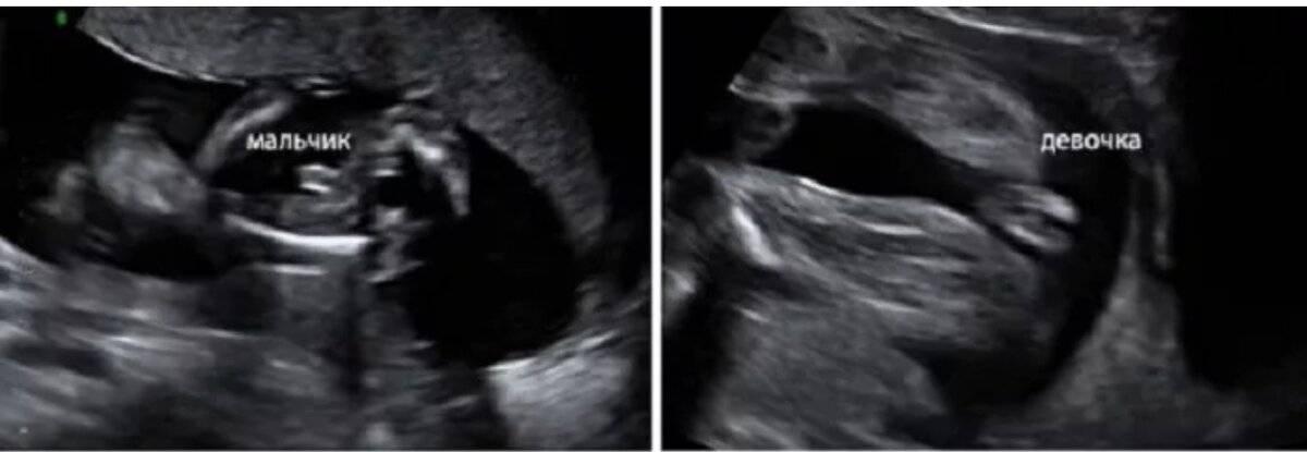 Отличие мальчика от девочки на узи. узи, как метод диагностирования пола ребенка. внутриутробная диагностика гермафродитизма