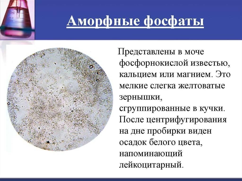 Фосфатурия у детей. фосфаты в моче у ребенка причины лечение комаровский
