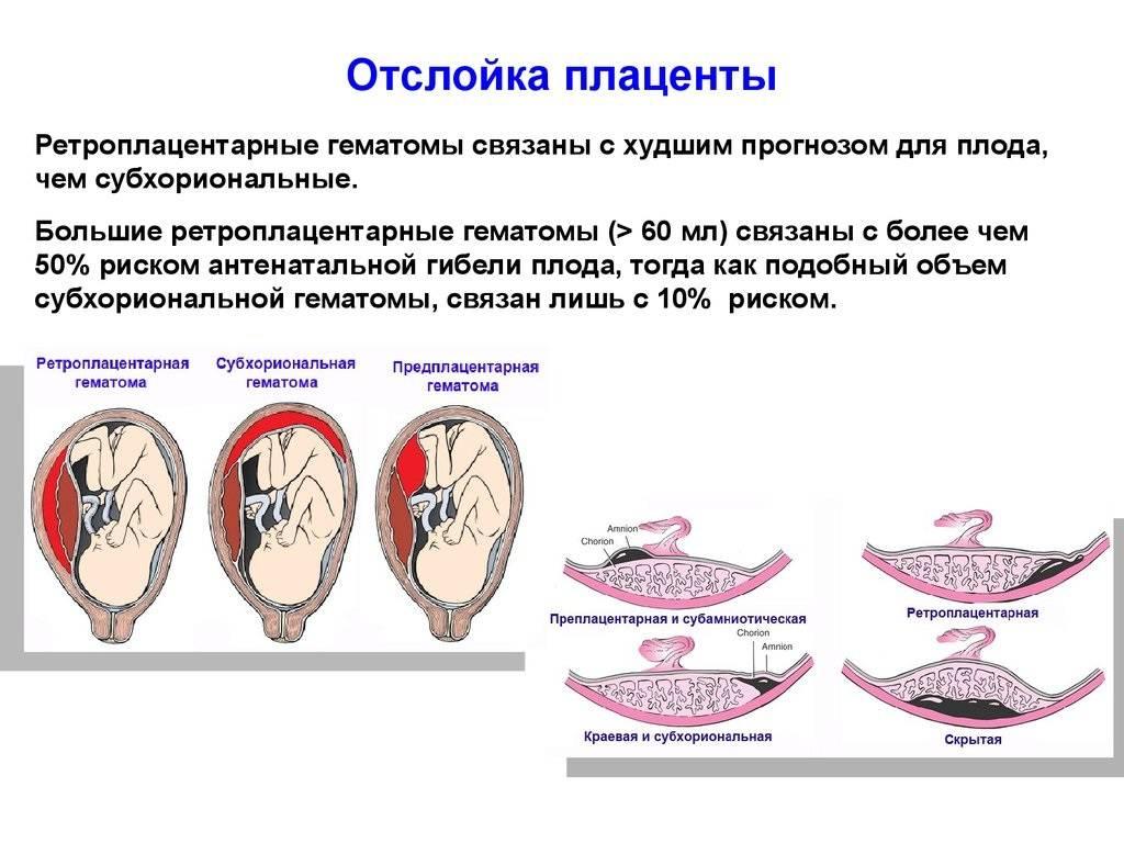 Оболочки плода, плацента
