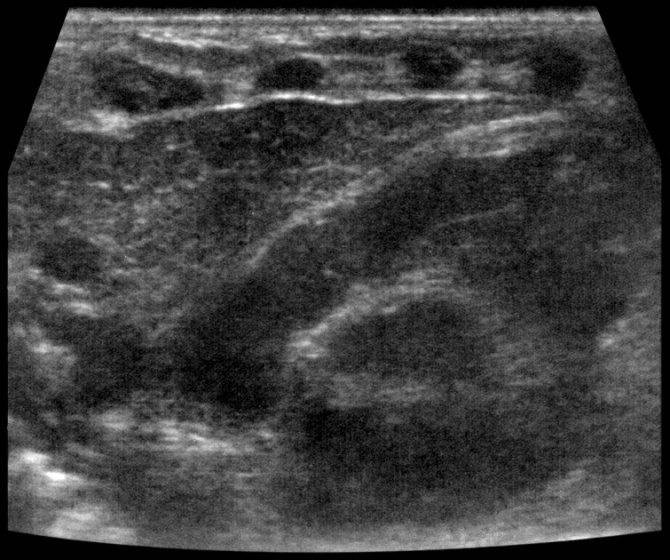 Синдром увеличения вилочковой железы у детей раннего возраста