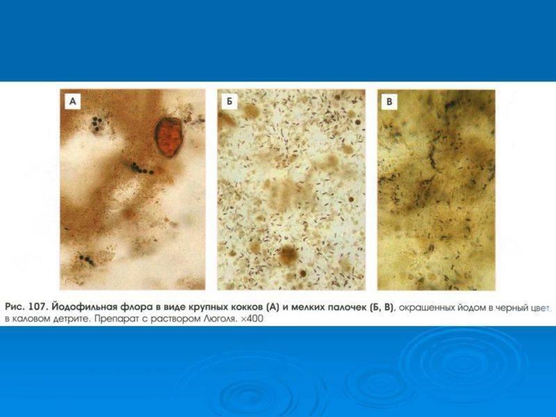 Развитие йодофильной патологической флоры: о чем говорят результаты анализов кала - мир бактерий