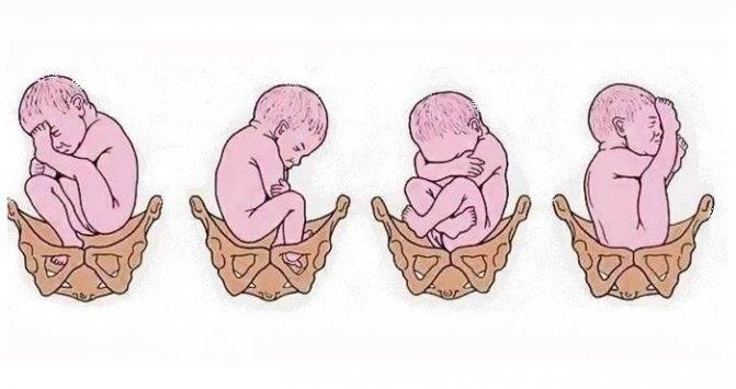 Расположение плода в животе по неделям newmed.su - все для мамы и малыша