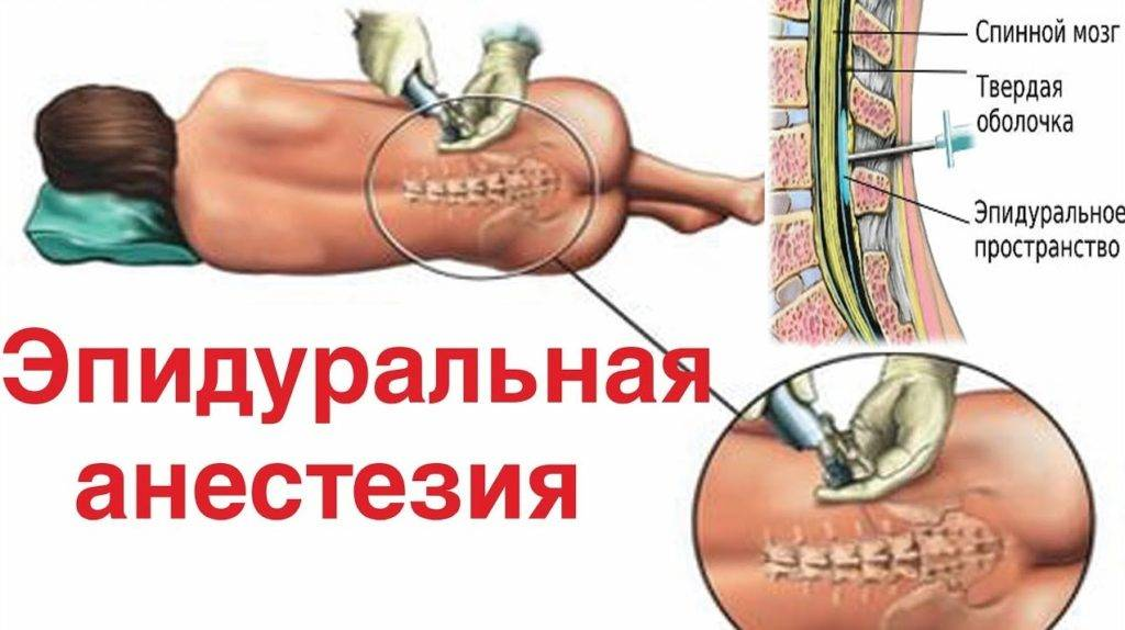 Болит спина после эпидуральной анестезии: что делать, лечение