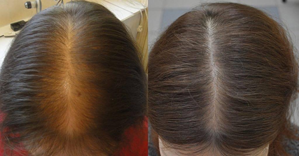 Как справиться с выпадением волос после родов и кормления грудью - центр эстетической медицины