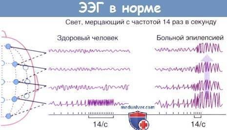 Электроэнцефалография (ээг): показания, проведение, расшифровка