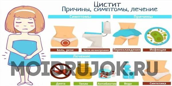 Цистит - симптомы, причины развития, лечение