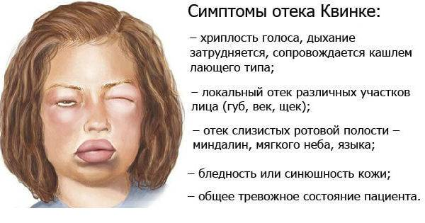 Отек квинке у детей | москва
