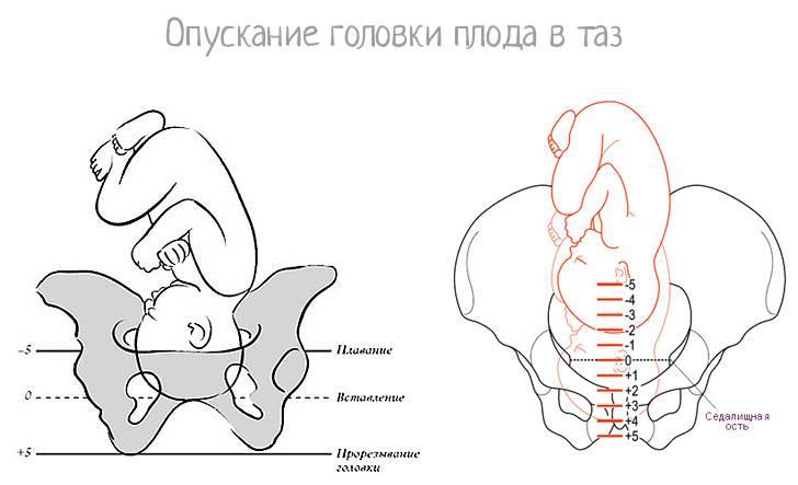 Физиологические изменения в организме женщины при беременности   «за рождение» киров
