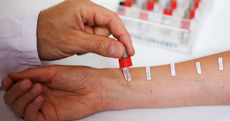 Как аллерголог выявляет аллергию у детей | диагностика