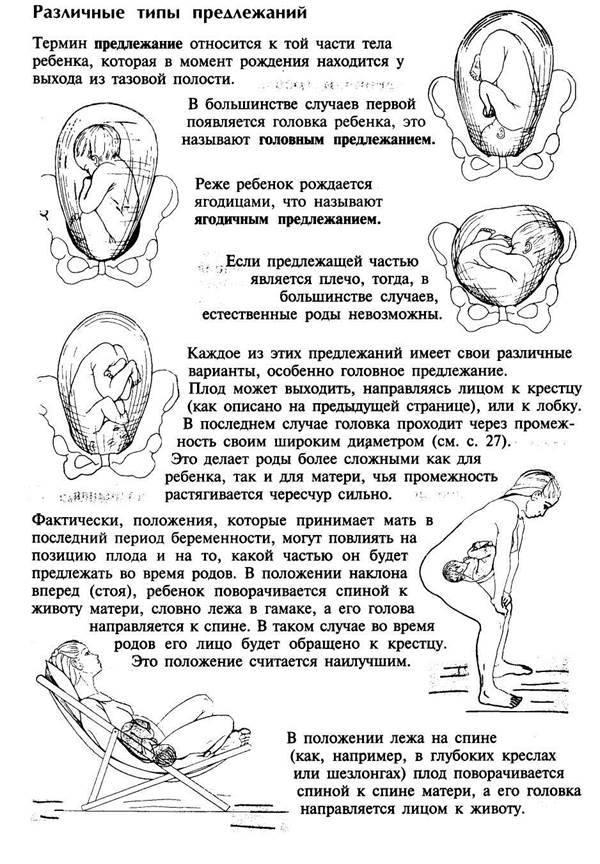 Предлежание плода – что нужно знать будущей маме - наблюдение беременности.  здоровье
