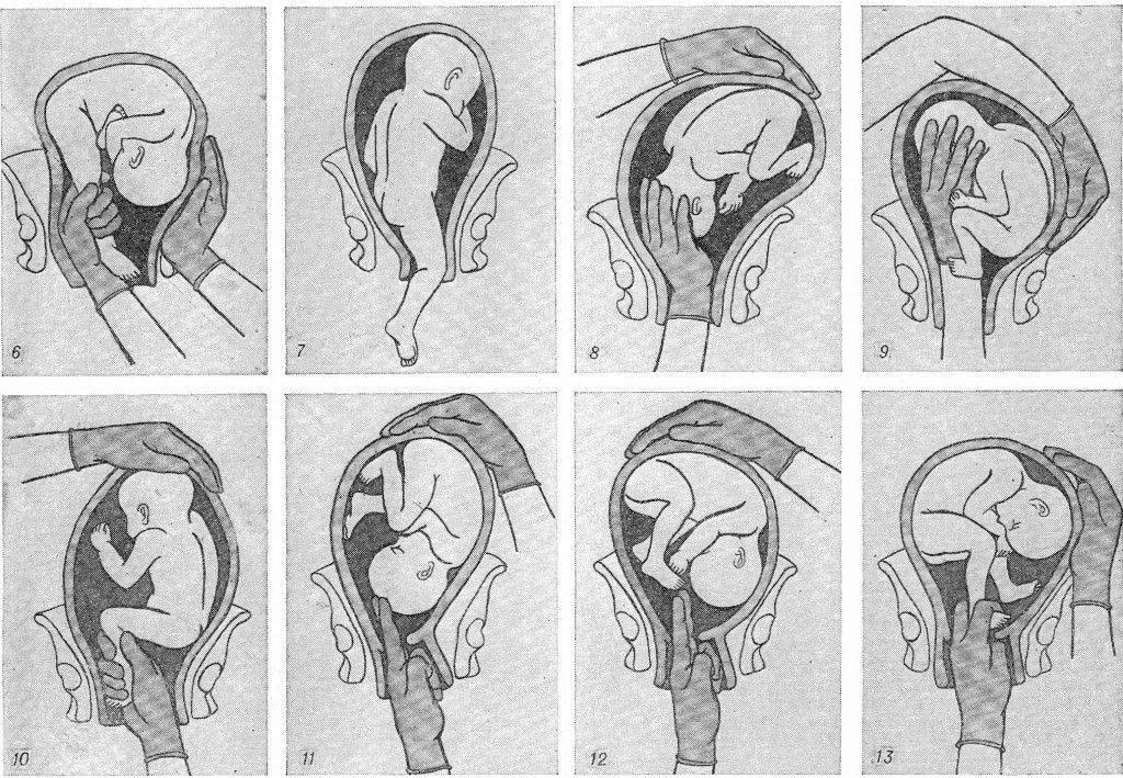 Если при ультразвуковом исследовании найдено расширение почечных лоханок (пиелоэктазия) | центр медицины плода