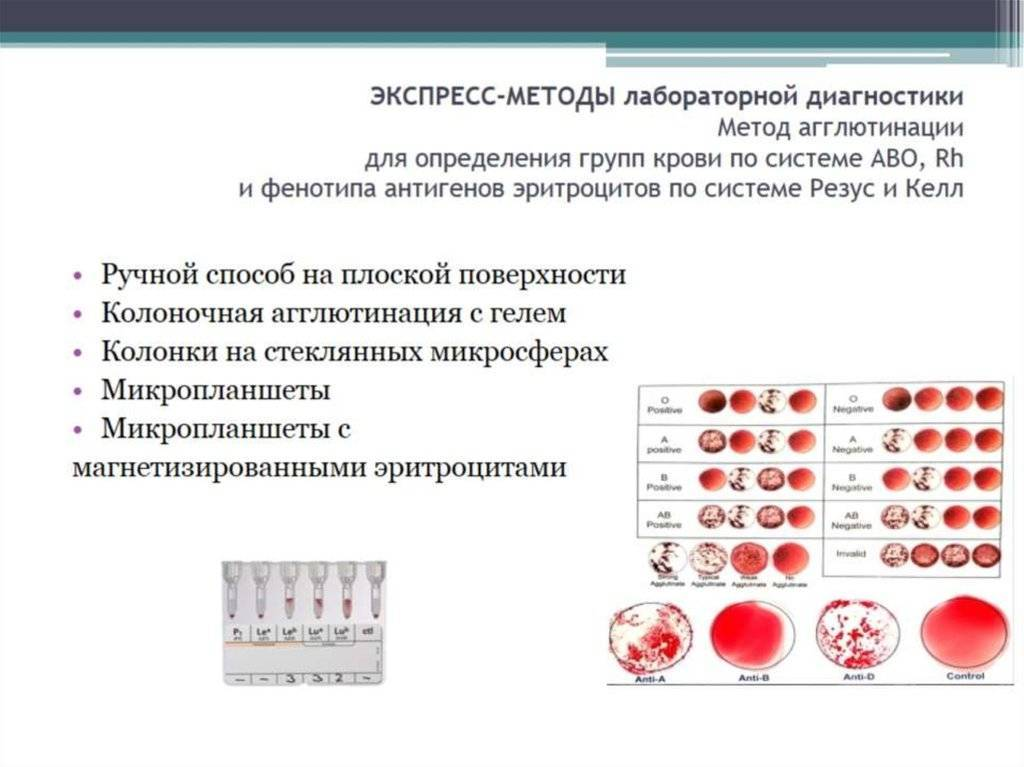 Определение резус-фактора плода по крови беременной женщины