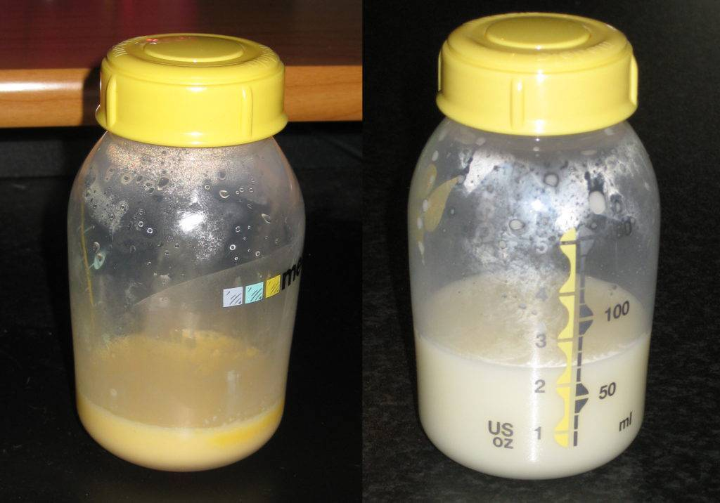 Что такое молозиво, когда оно появляется после родов, как выглядит, состав, цвет, что делать, если его нет, почему нельзя выдавливать, когда сменится на молоко