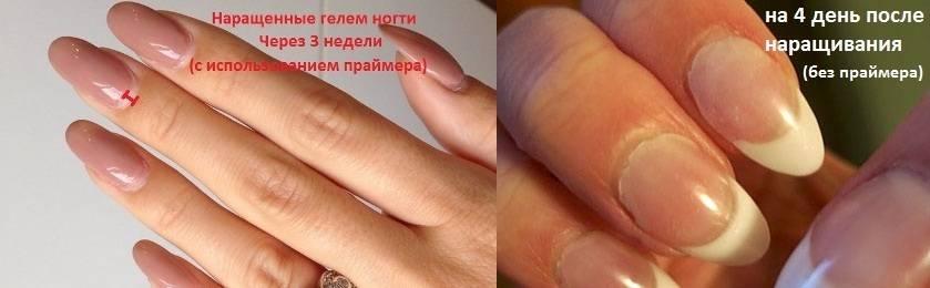 Можно ли наращивать ногти беременным? 10 фото вредно ли делать наращивание гелем или акрилом во время беременности?