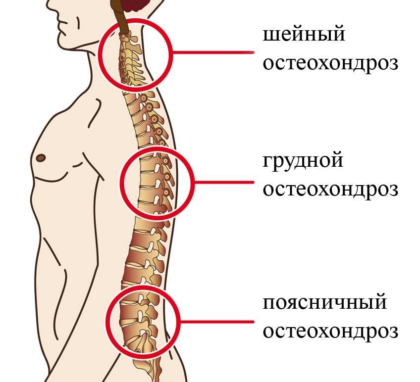 Болезни позвоночника - лечение, симптомы, причины, диагностика   центр дикуля