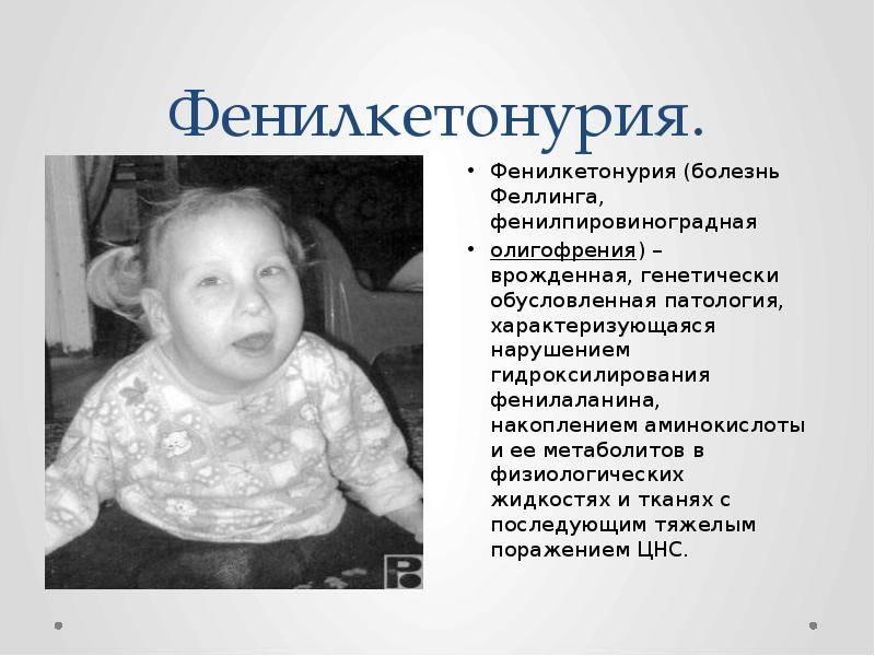 Умственная отсталость у детей: симптомы олигофрении до 3 лет, причины и лечение