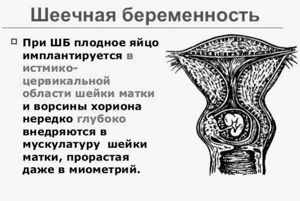 Шейка матки у женщины