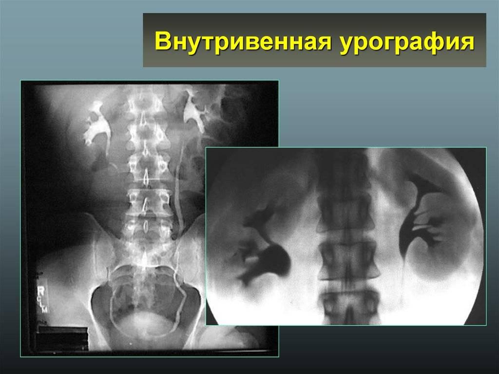 Седация: что это, лечение зубов под седацией у детей, препараты, противопоказания, отзывы, цена